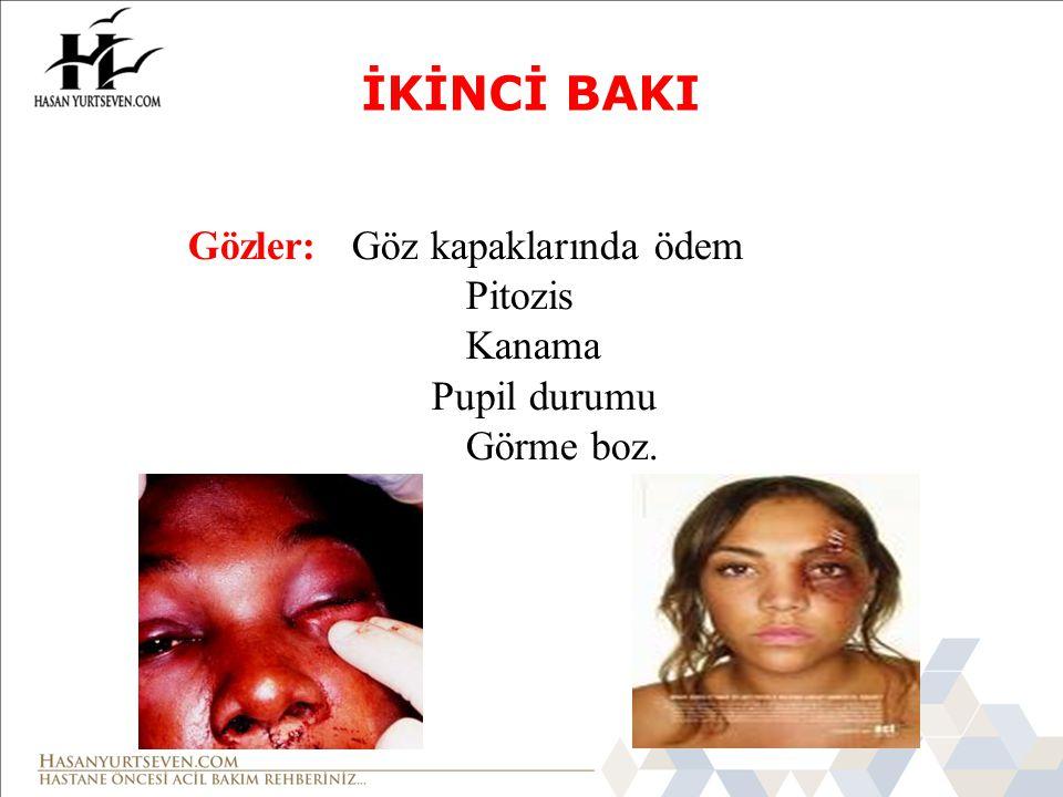 İKİNCİ BAKI Gözler: Göz kapaklarında ödem Pitozis Kanama Pupil durumu