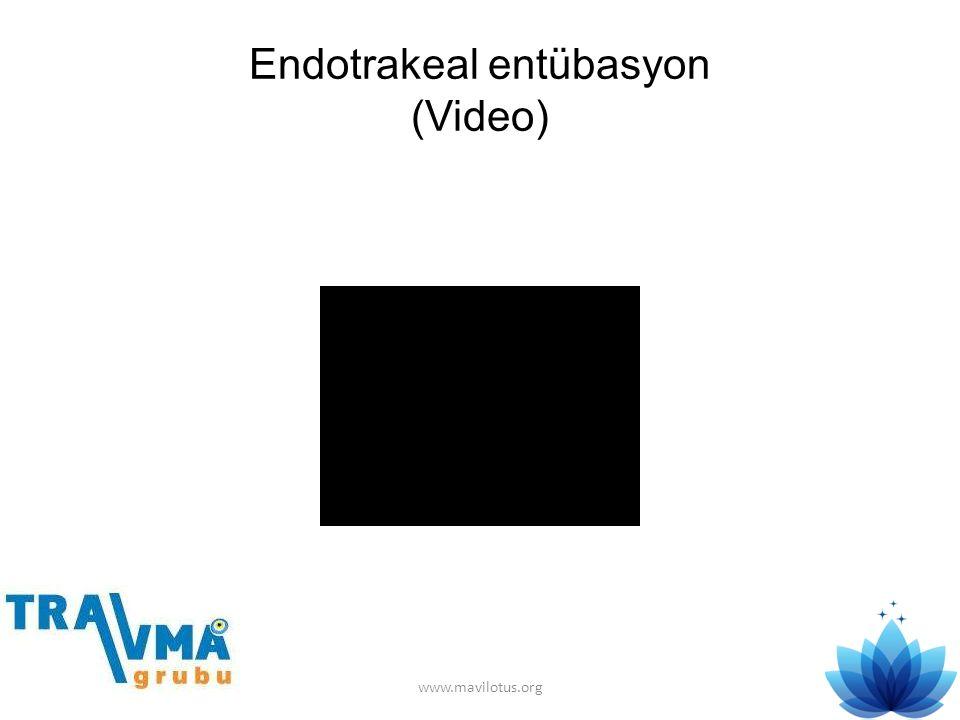 Endotrakeal entübasyon (Video)