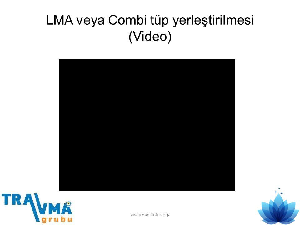 LMA veya Combi tüp yerleştirilmesi (Video)