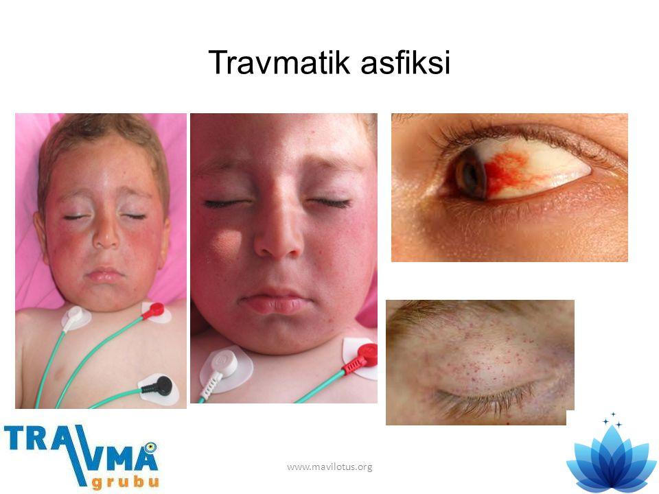 Travmatik asfiksi www.mavilotus.org