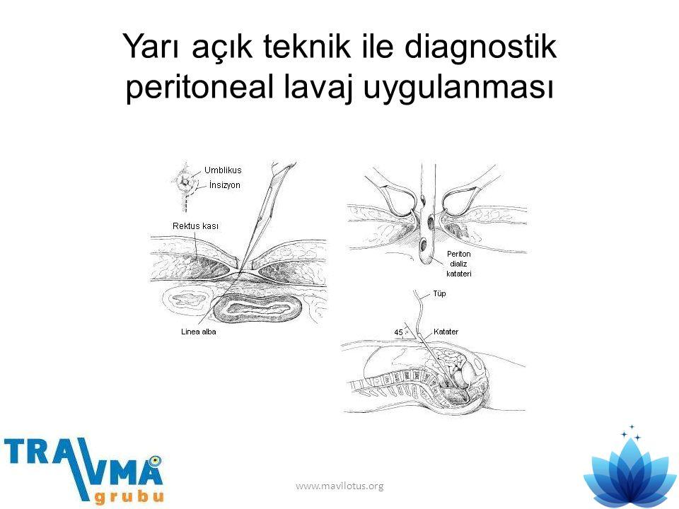 Yarı açık teknik ile diagnostik peritoneal lavaj uygulanması