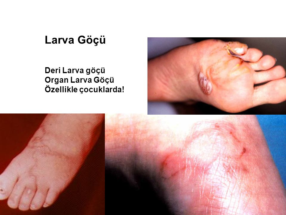 Larva Göçü Deri Larva göçü Organ Larva Göçü Özellikle çocuklarda!