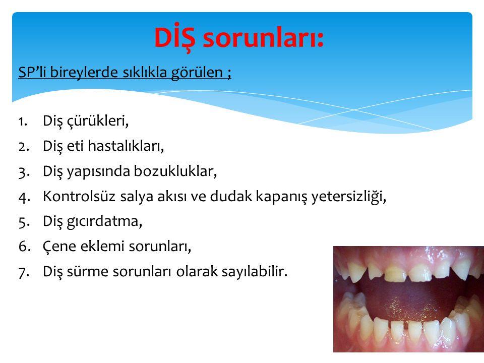 DİŞ sorunları: SP'li bireylerde sıklıkla görülen ; Diş çürükleri,