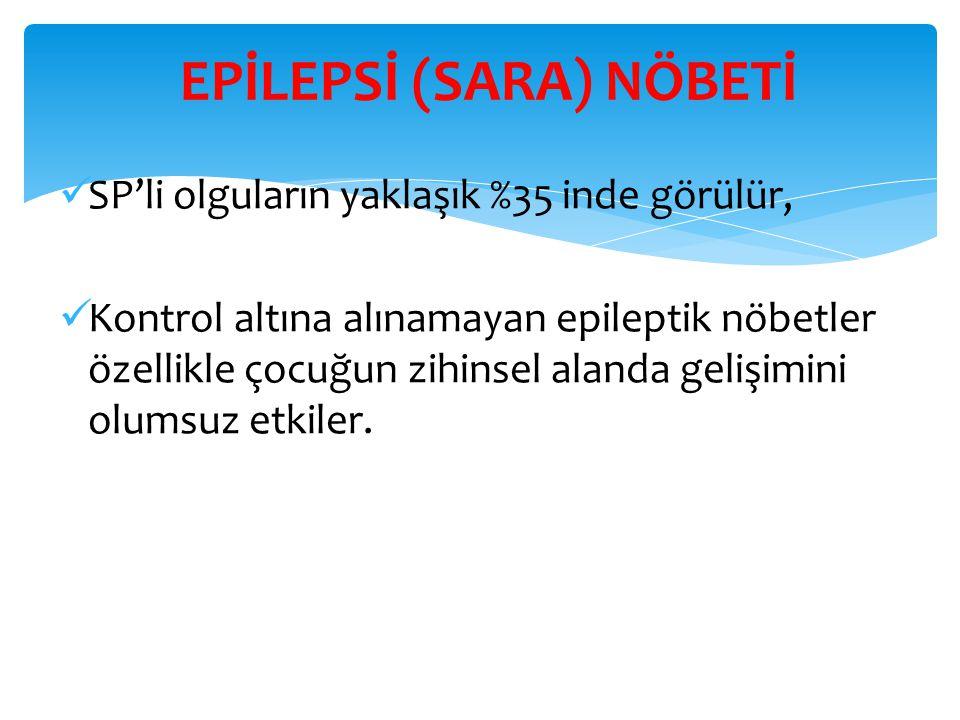 EPİLEPSİ (SARA) NÖBETİ