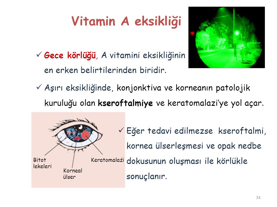 Vitamin A eksikliği Gece körlüğü, A vitamini eksikliğinin en erken belirtilerinden biridir.