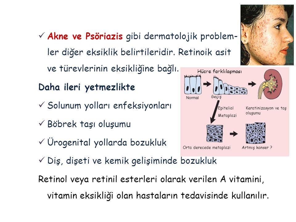 Daha ileri yetmezlikte Solunum yolları enfeksiyonları