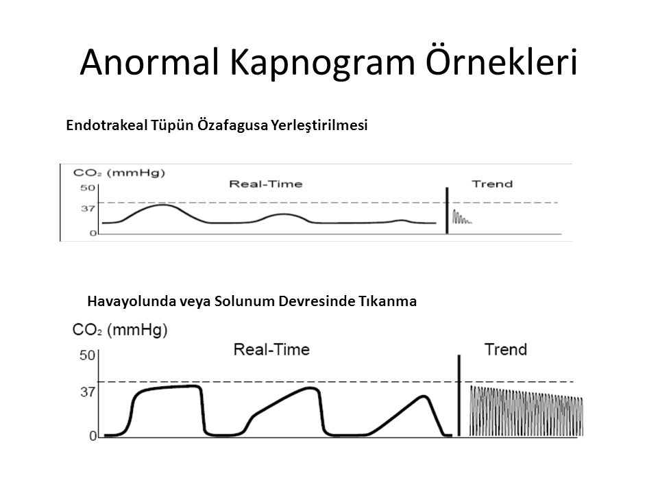 Anormal Kapnogram Örnekleri