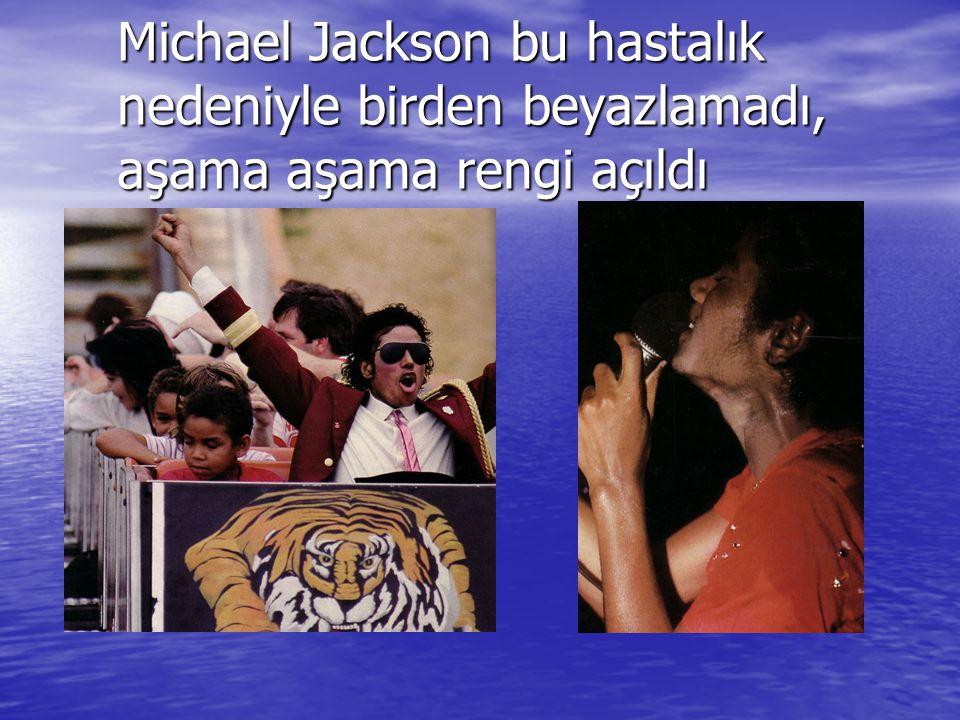 Michael Jackson bu hastalık nedeniyle birden beyazlamadı, aşama aşama rengi açıldı