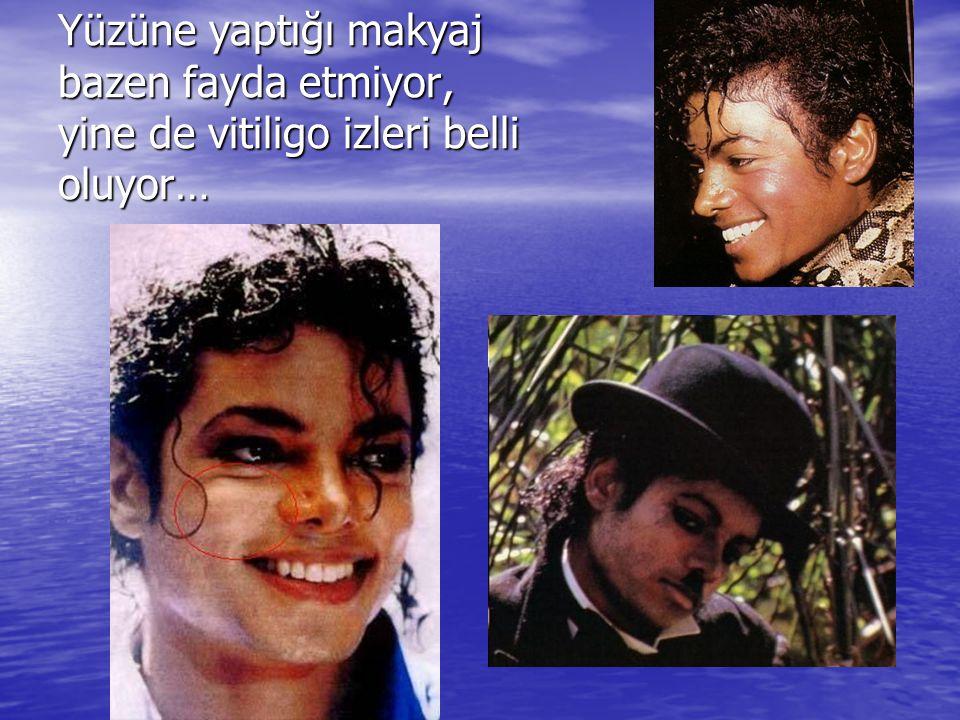 Yüzüne yaptığı makyaj bazen fayda etmiyor, yine de vitiligo izleri belli oluyor…