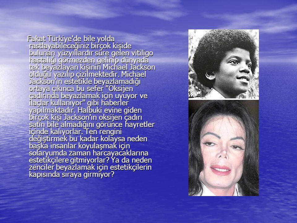 Fakat Türkiye de bile yolda rastlayabileceğiniz birçok kişide bulunan yüzyıllardır süre gelen vitiligo hastalığı görmezden gelinip dünyada tek beyazlayan kişinin Michael Jackson olduğu yazılıp çizilmektedir.