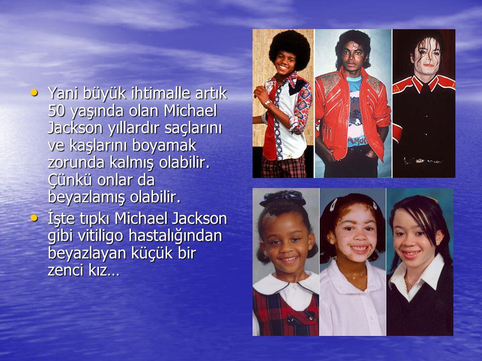 Yani büyük ihtimalle artık 50 yaşında olan Michael Jackson yıllardır saçlarını ve kaşlarını boyamak zorunda kalmış olabilir. Çünkü onlar da beyazlamış olabilir.