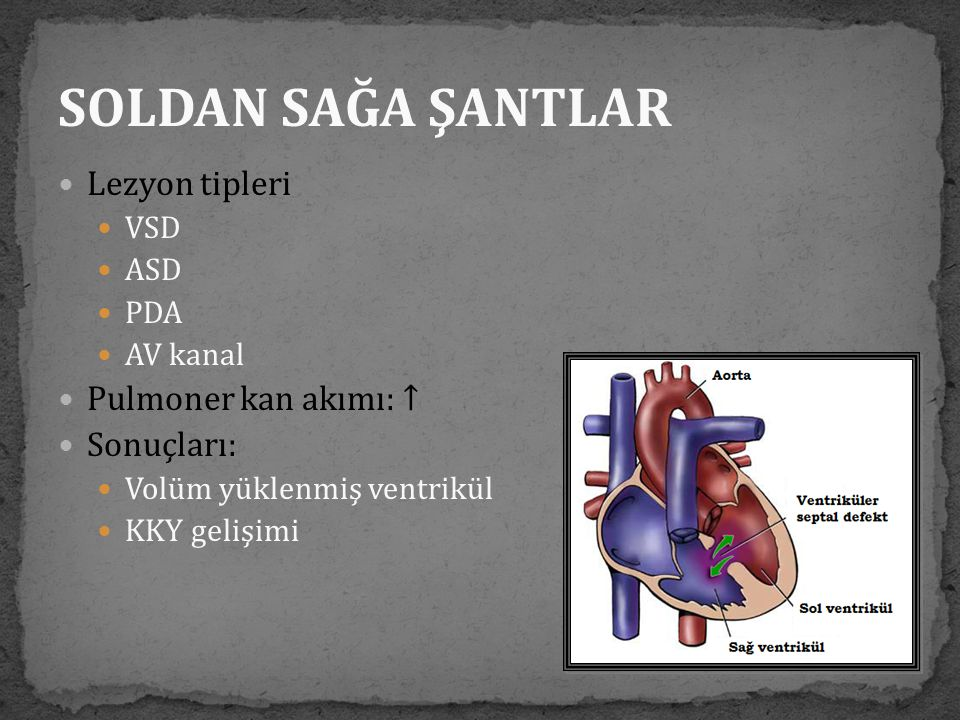 SOLDAN SAĞA ŞANTLAR Lezyon tipleri Pulmoner kan akımı: ↑ Sonuçları: