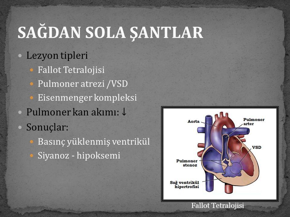 SAĞDAN SOLA ŞANTLAR Lezyon tipleri Pulmoner kan akımı: ↓ Sonuçlar: