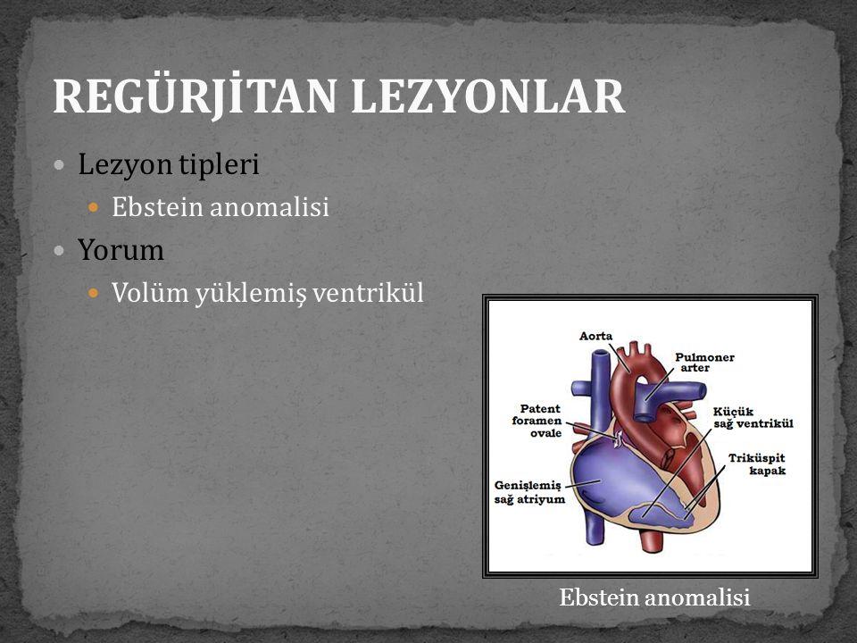 REGÜRJİTAN LEZYONLAR Lezyon tipleri Yorum Ebstein anomalisi