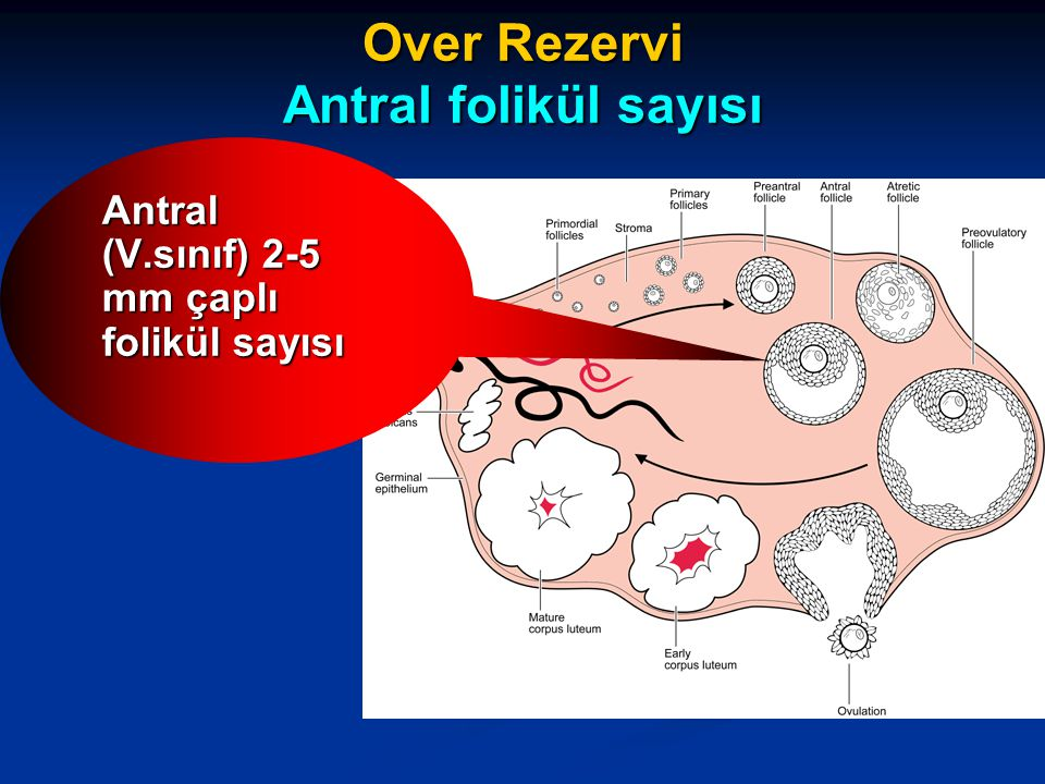 Over Rezervi Antral folikül sayısı