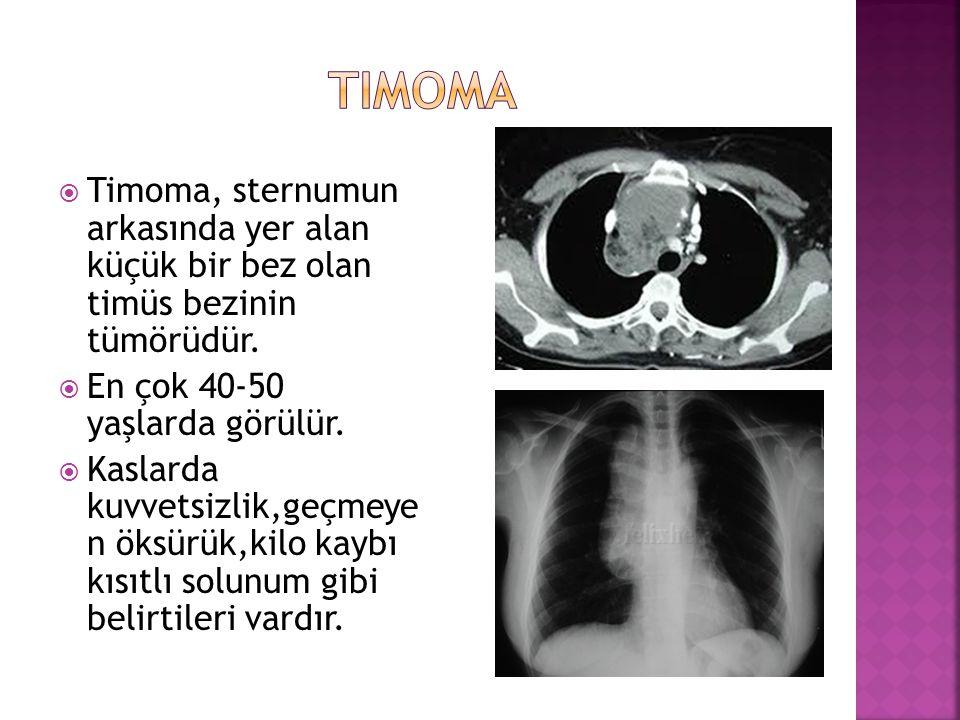 timoma Timoma, sternumun arkasında yer alan küçük bir bez olan timüs bezinin tümörüdür. En çok 40-50 yaşlarda görülür.