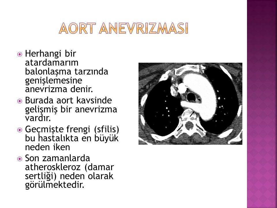 Aort anevrizmasi Herhangi bir atardamarım balonlaşma tarzında genişlemesine anevrizma denir.