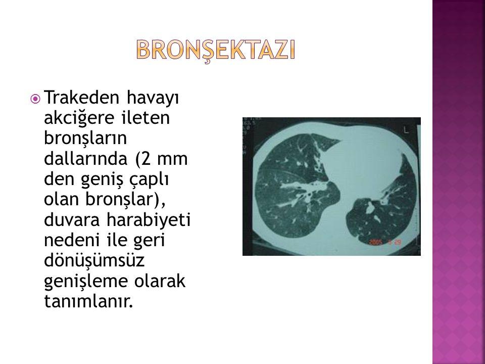 bronşektazi