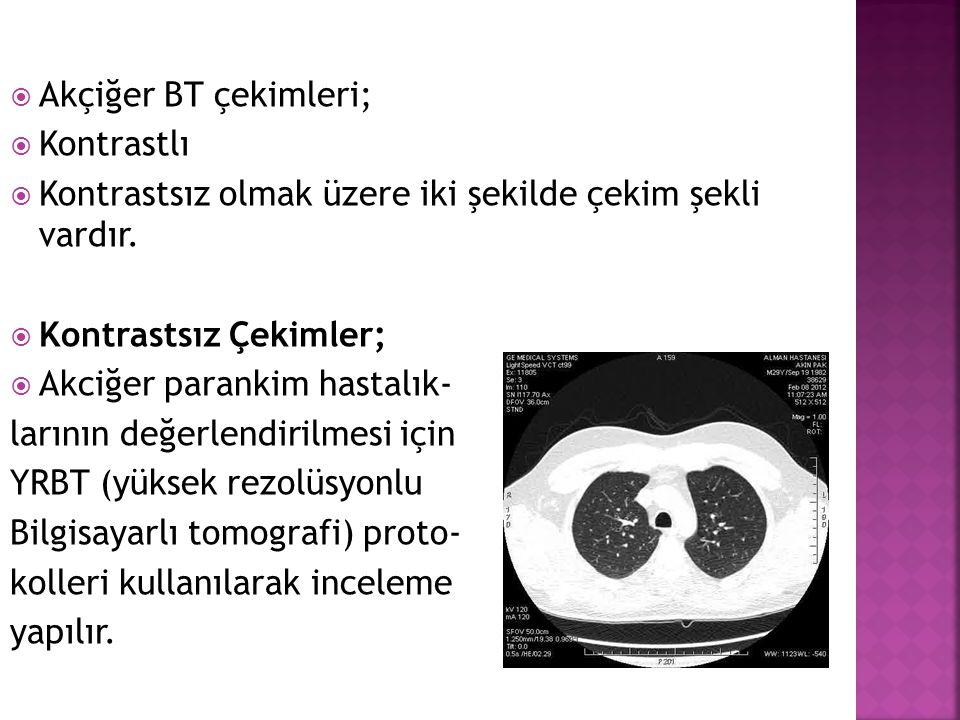Akçiğer BT çekimleri; Kontrastlı. Kontrastsız olmak üzere iki şekilde çekim şekli vardır. Kontrastsız Çekimler;
