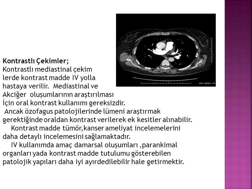 Kontrastlı Çekimler; Kontrastlı mediastinal çekim. lerde kontrast madde IV yolla. hastaya verilir. Mediastinal ve.