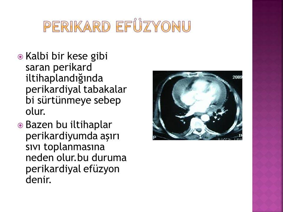 Perikard efüzyonu Kalbi bir kese gibi saran perikard iltihaplandığında perikardiyal tabakalar bi sürtünmeye sebep olur.