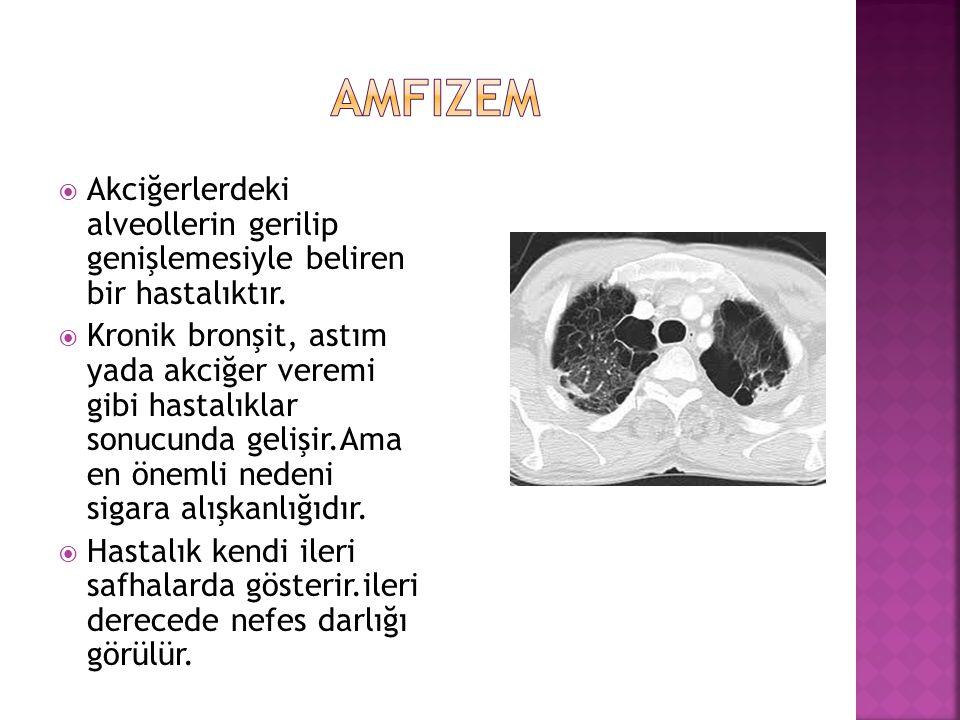 amfizem Akciğerlerdeki alveollerin gerilip genişlemesiyle beliren bir hastalıktır.