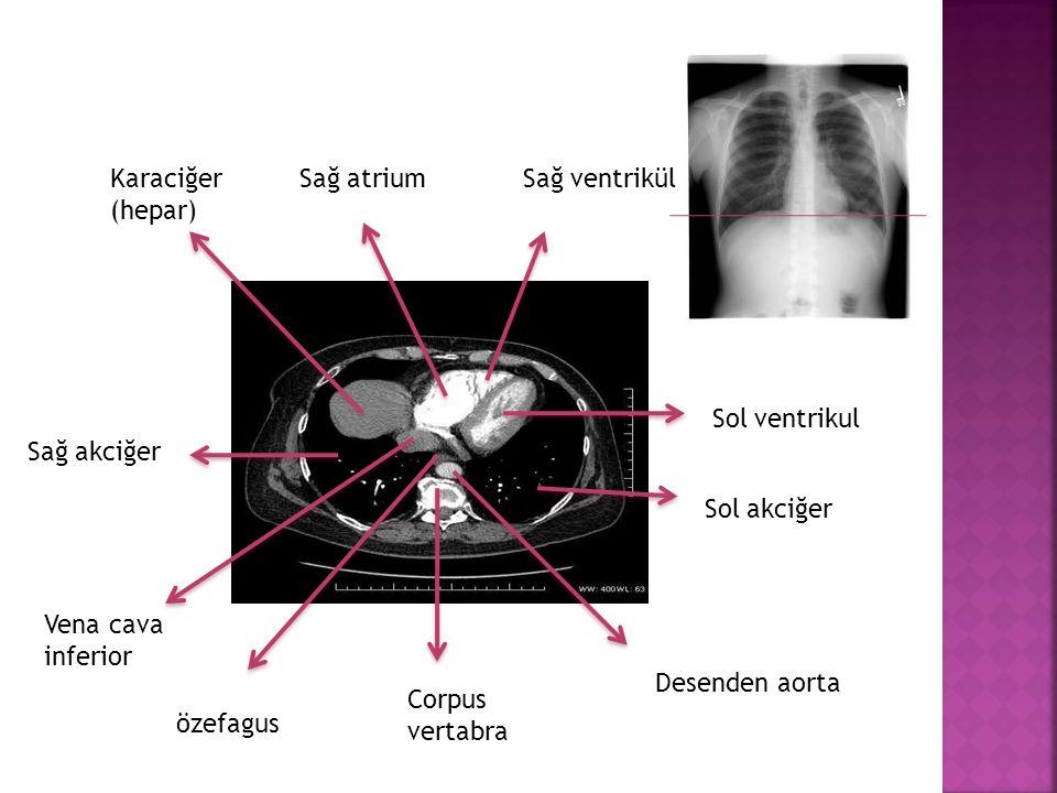 Karaciğer (hepar) Sağ atrium. Sağ ventrikül. Sol ventrikul. Sağ akciğer. Sol akciğer. Vena cava.
