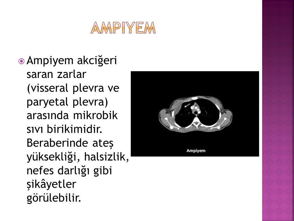 ampiyem
