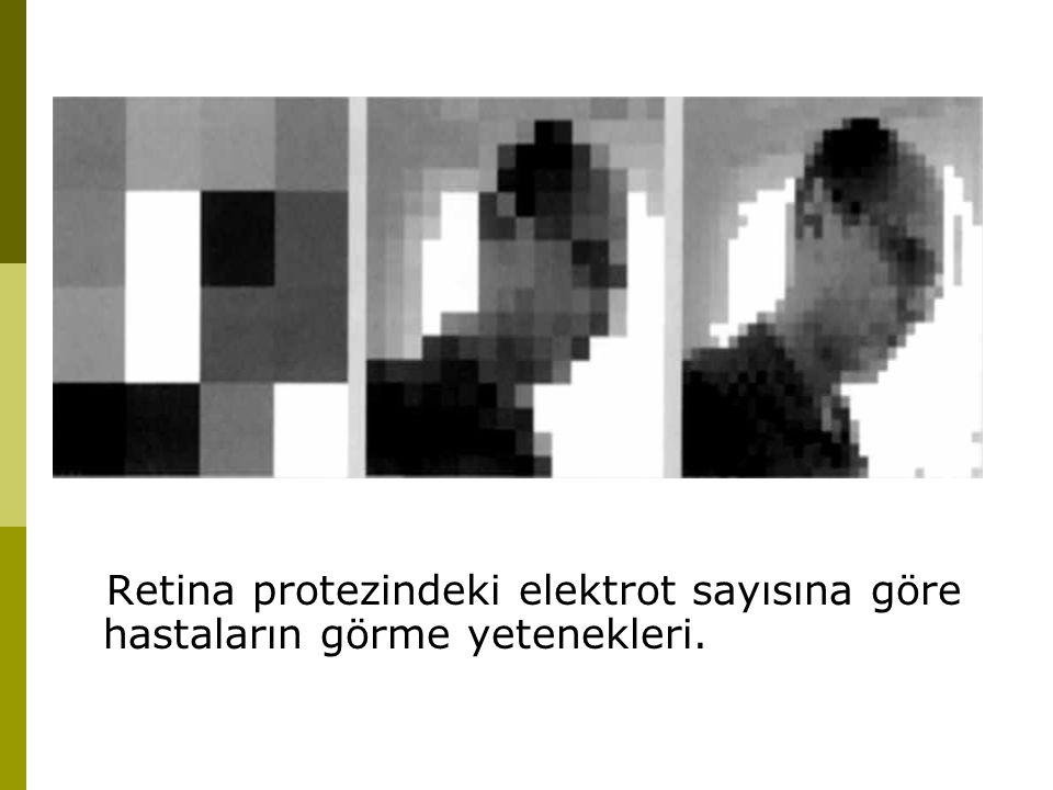 Retina protezindeki elektrot sayısına göre hastaların görme yetenekleri.