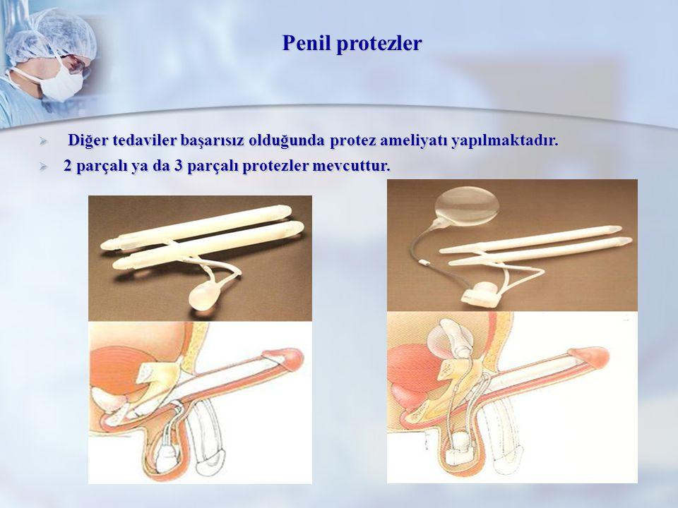 Penil protezler Diğer tedaviler başarısız olduğunda protez ameliyatı yapılmaktadır.