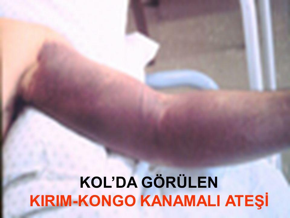 KOL'DA GÖRÜLEN KIRIM-KONGO KANAMALI ATEŞİ