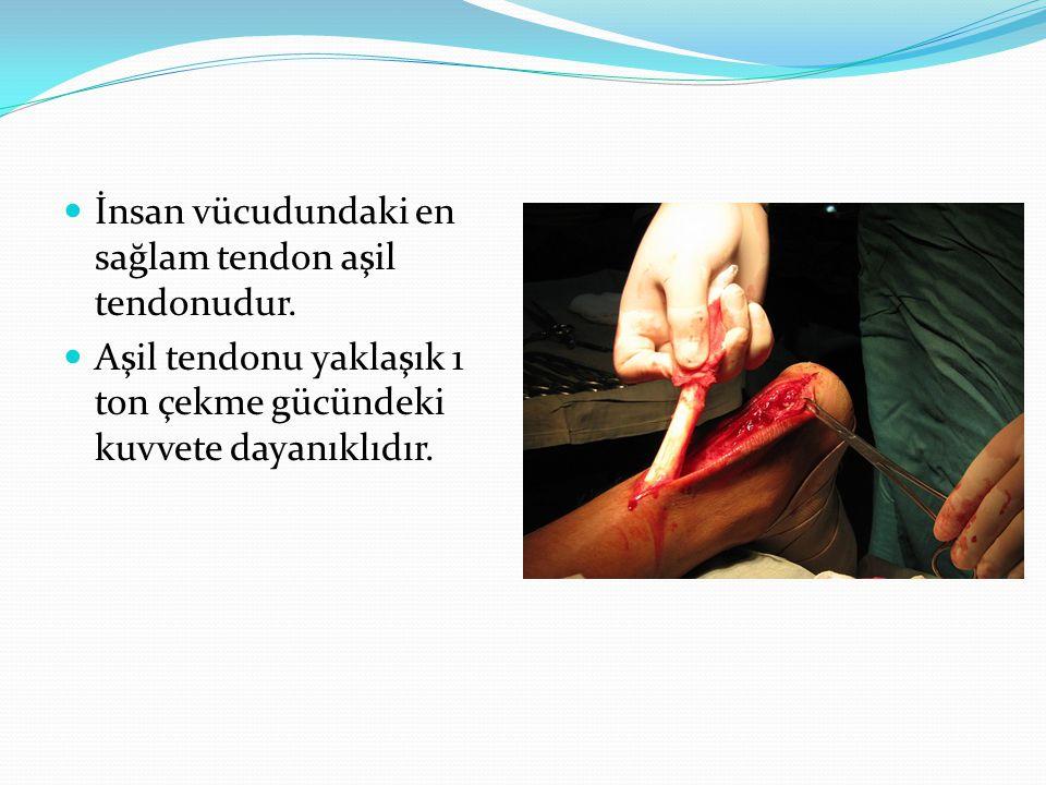 İnsan vücudundaki en sağlam tendon aşil tendonudur.