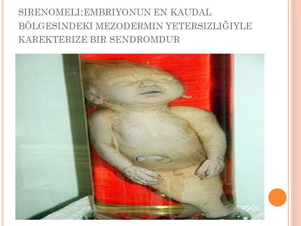 sirenomeli:embriyonun en kaudal bölgesindeki mezodermin yetersizliğiyle karekterize bir sendromdur