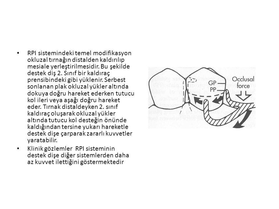 RPI sistemindeki temel modifikasyon okluzal tırnağın distalden kaldırılıp mesiale yerleştirilmesidir. Bu şekilde destek diş 2. Sınıf bir kaldıraç prensibindeki gibi yüklenir. Serbest sonlanan plak okluzal yükler altında dokuya doğru hareket ederken tutucu kol ileri veya aşağı doğru hareket eder. Tırnak distaldeyken 2. sınıf kaldıraç oluşarak okluzal yükler altında tutucu kol desteğin önünde kaldığından tersine yukarı hareketle destek dişe çarparak zararlı kuvvetler yaratabilir.