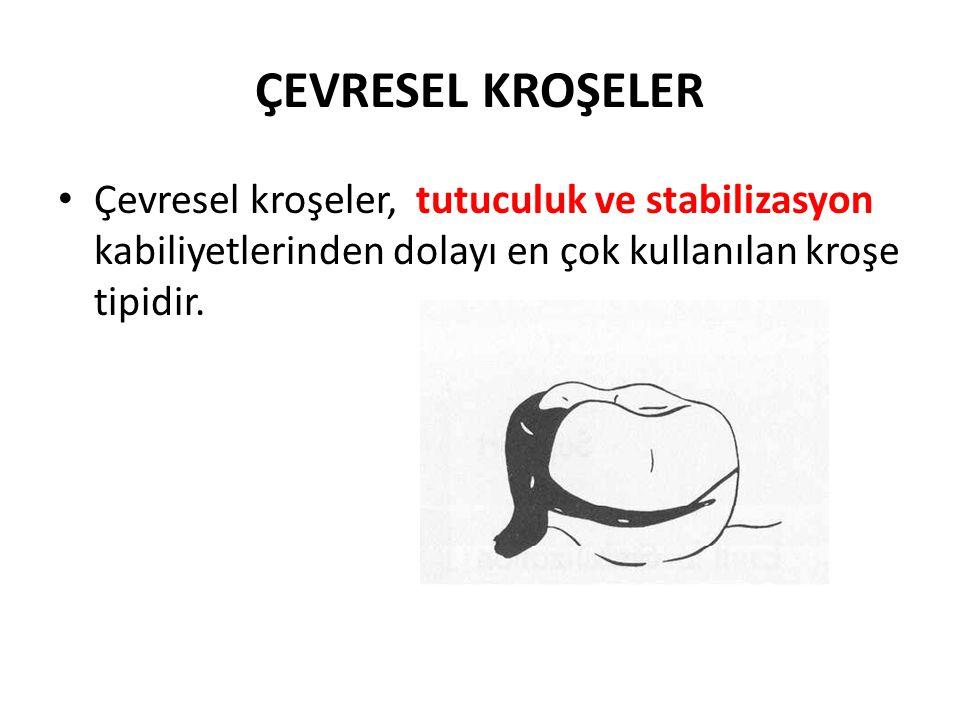 ÇEVRESEL KROŞELER Çevresel kroşeler, tutuculuk ve stabilizasyon kabiliyetlerinden dolayı en çok kullanılan kroşe tipidir.
