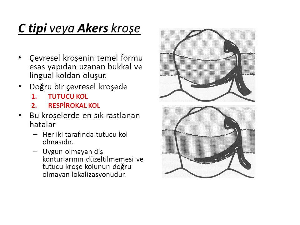 C tipi veya Akers kroşe Çevresel kroşenin temel formu esas yapıdan uzanan bukkal ve lingual koldan oluşur.