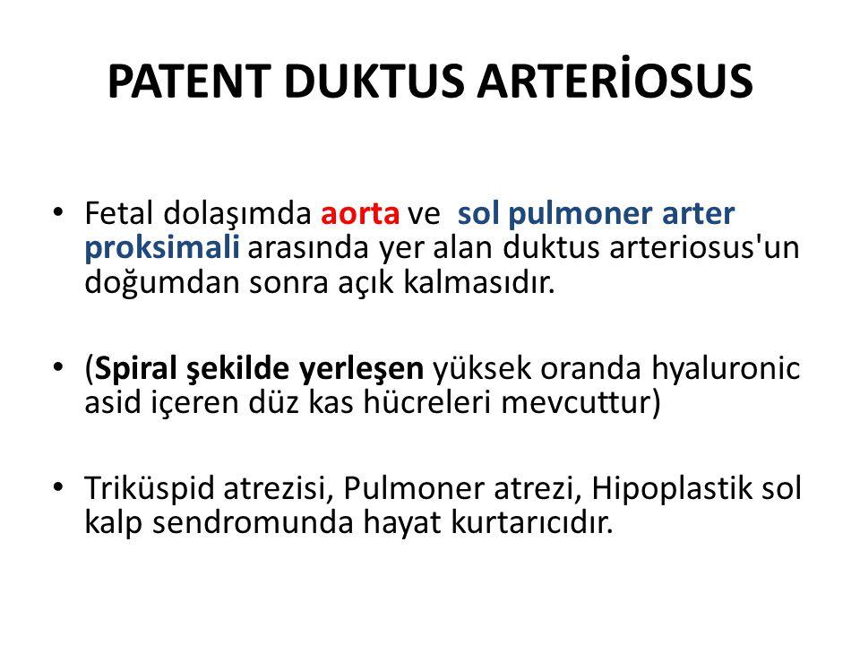 PATENT DUKTUS ARTERİOSUS