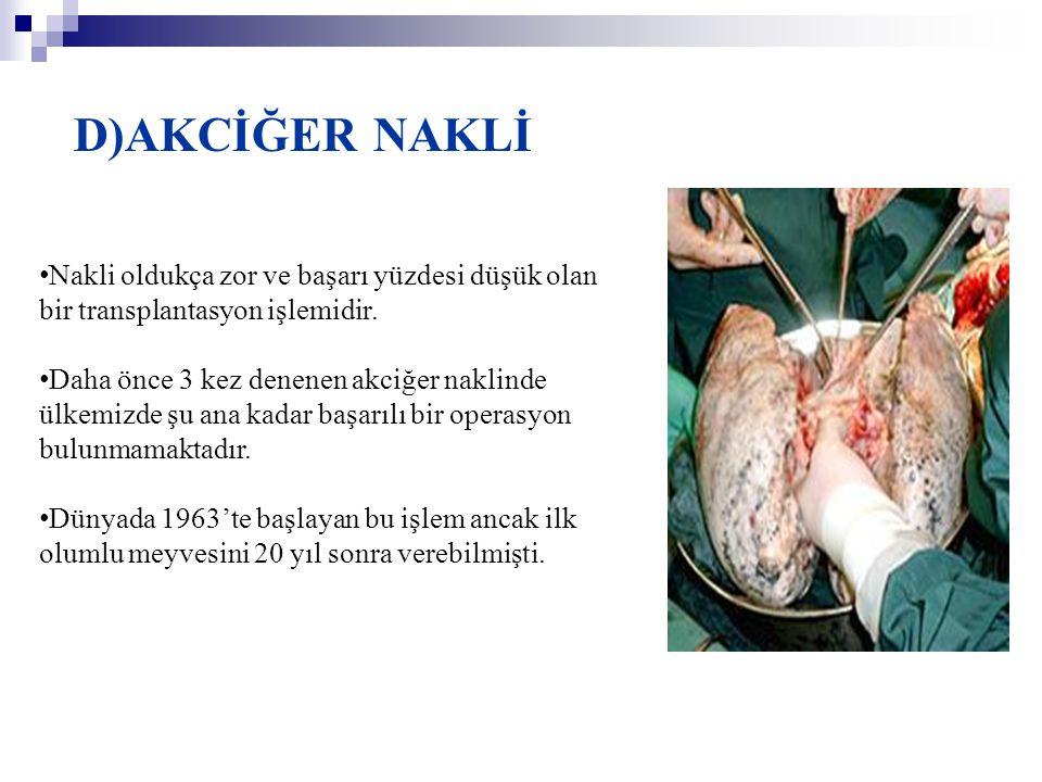 D)AKCİĞER NAKLİ Nakli oldukça zor ve başarı yüzdesi düşük olan bir transplantasyon işlemidir.