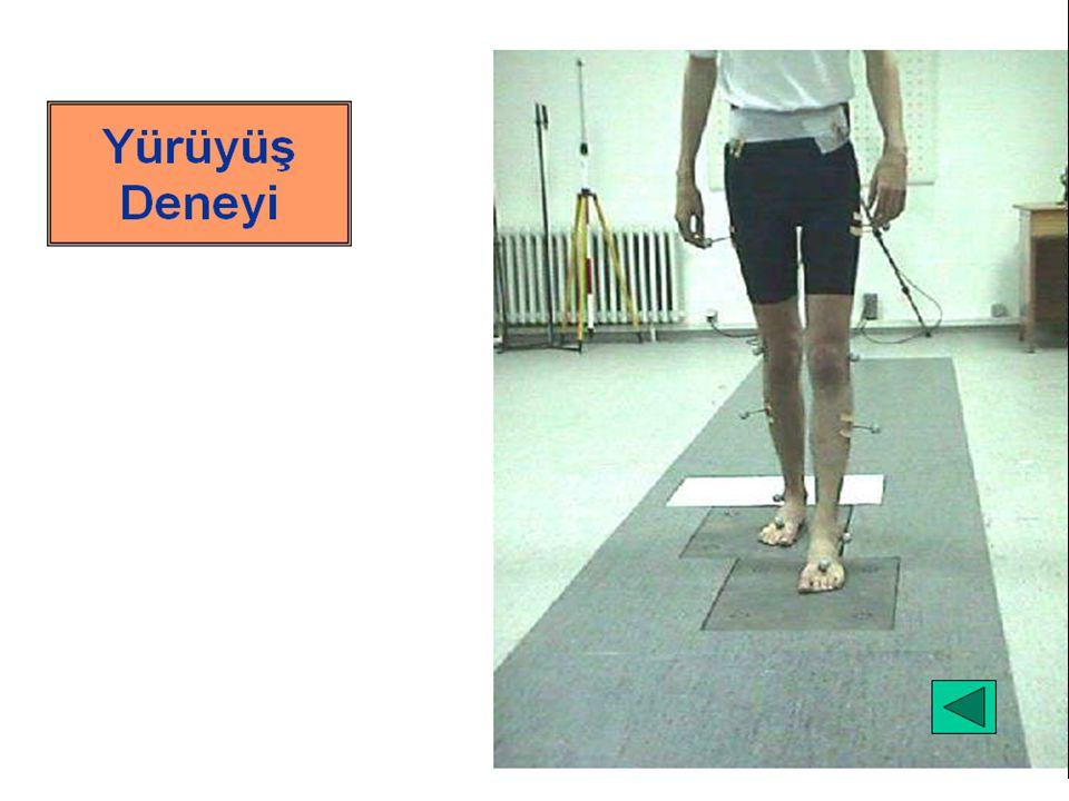 Kızılötesi ileri teknoloji ile çalışan bir tarayıcı (Podoscanalyser) kullanılarak gerçekleştirilebilir.