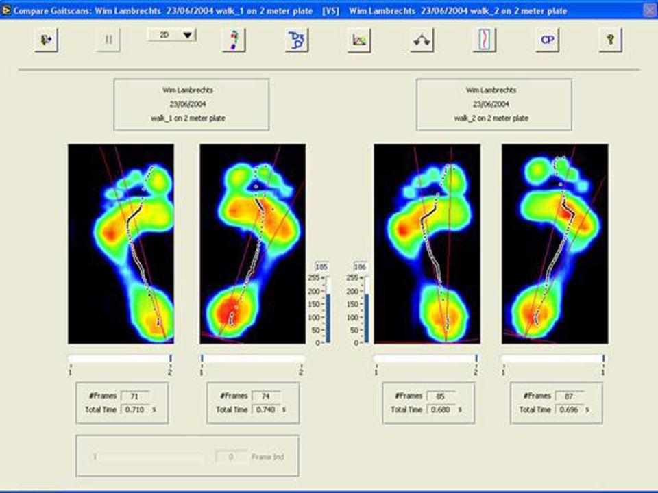 Yürüme Analizi Ayak Haritasının Çıkarılması