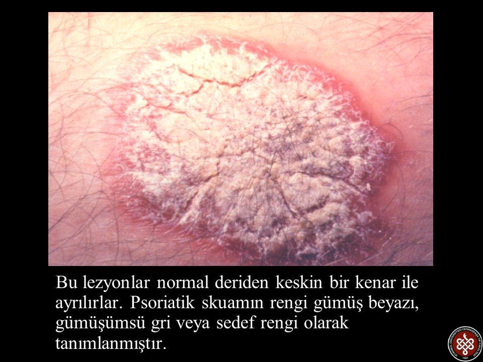 Bu lezyonlar normal deriden keskin bir kenar ile ayrılırlar
