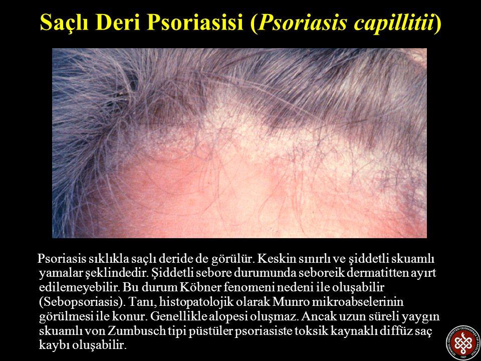 Saçlı Deri Psoriasisi (Psoriasis capillitii)