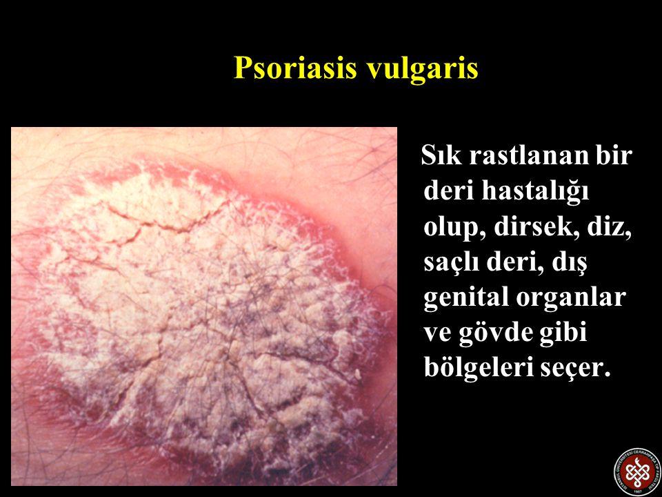Psoriasis vulgaris Sık rastlanan bir deri hastalığı olup, dirsek, diz, saçlı deri, dış genital organlar ve gövde gibi bölgeleri seçer.