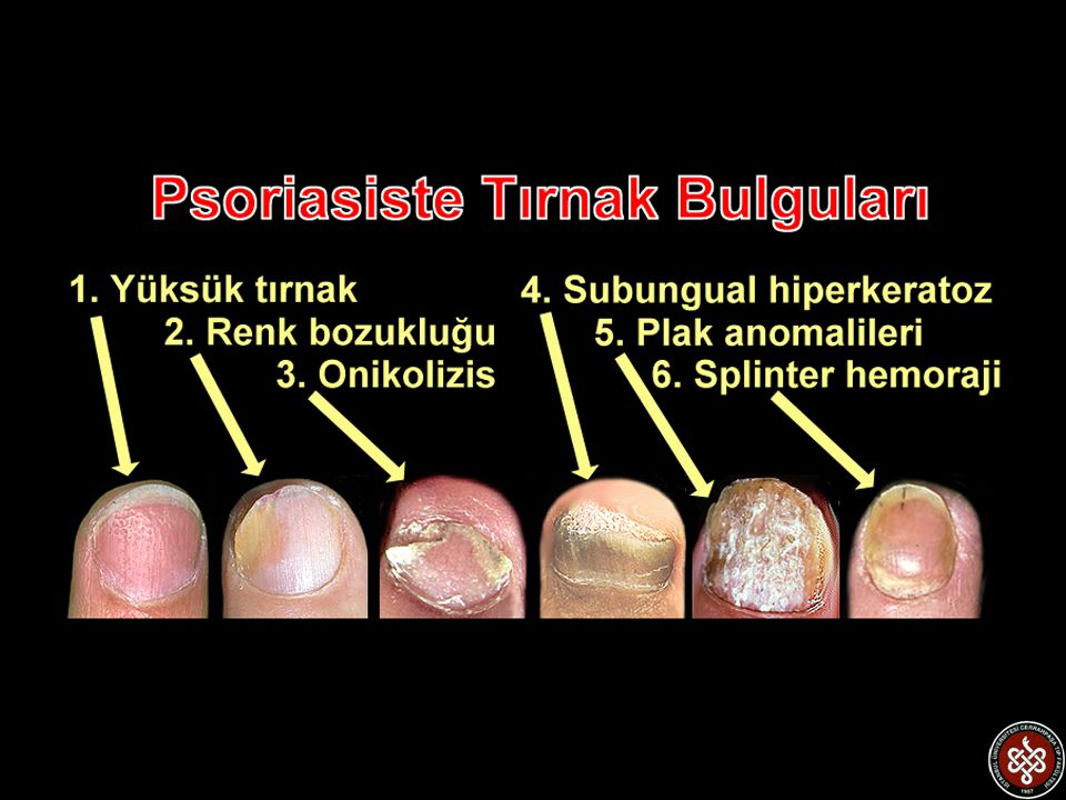 Tırnak Psoriasisi