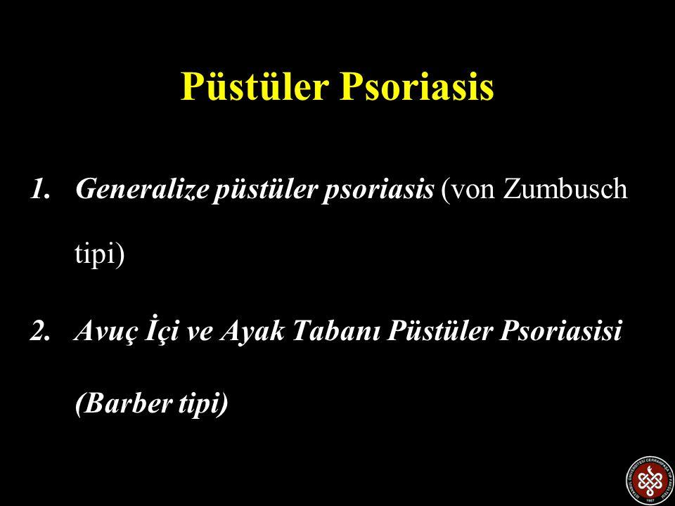 Püstüler Psoriasis Generalize püstüler psoriasis (von Zumbusch tipi)