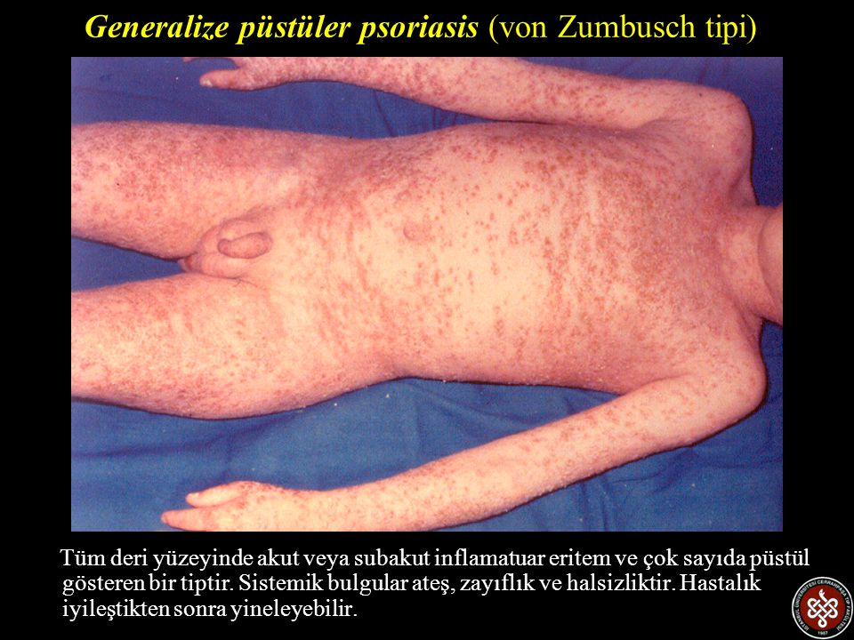 Generalize püstüler psoriasis (von Zumbusch tipi)