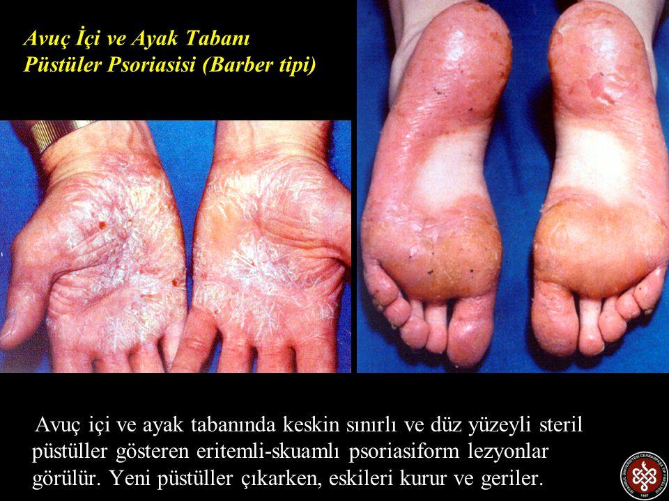 Avuç İçi ve Ayak Tabanı Püstüler Psoriasisi (Barber tipi)