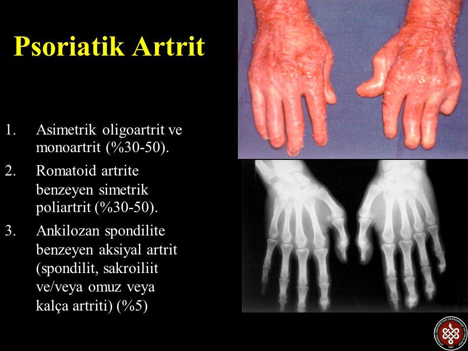Psoriatik Artrit Asimetrik oligoartrit ve monoartrit (%30-50).