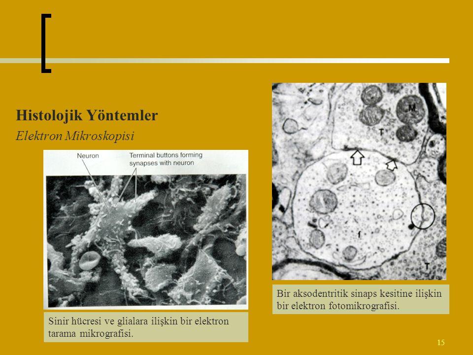 Histolojik Yöntemler Elektron Mikroskopisi