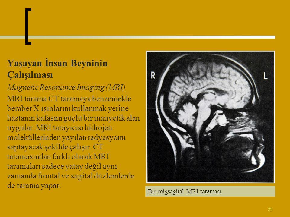 Yaşayan İnsan Beyninin Çalışılması